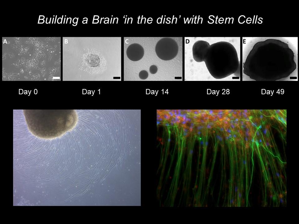 Bulding a brain in a Dish